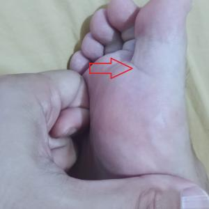 足ツボで過敏性腸症候群(IBS)が改善した?やり方を図解!