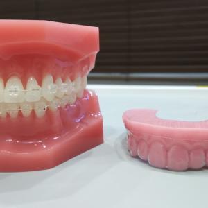 矯正の治療で絶対に歯を抜かないは可能?