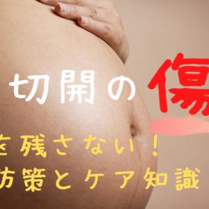 帝王切開の傷あとを残さない!妊娠中からできる予防策とケア知識