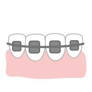 アラフォーで歯の矯正を始めた5つの理由、始める前の6つの不安に対する感想