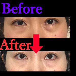アラフォーから目の下のたるみを自力で改善する方法【1週間集中ケアで確実】ビフォーアフター画像アリ