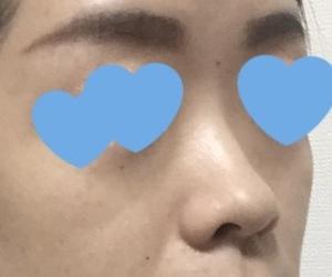 【ダウンタイム編】共立美容外科の新妻先生に鼻のプロテーゼと耳介軟骨移植をしてもらいました(手術前と比べてみる7日目)