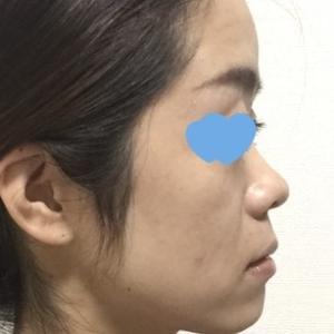 【ダウンタイム編】共立美容外科横浜院院長の新妻先生に鼻のプロテーゼと耳介軟骨移植をしてもらいました(8日~10日目と手術前の横顔を比べてみる)