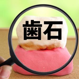 【歯列矯正】恐怖の歯石除去!!…克服?!