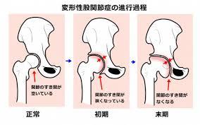 人工股関節手術を勧められる