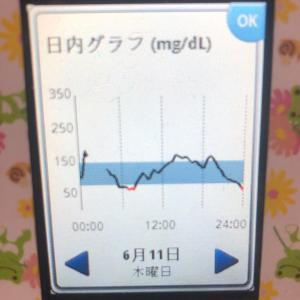 1型糖尿病 昨日今日の血糖値 リブレ