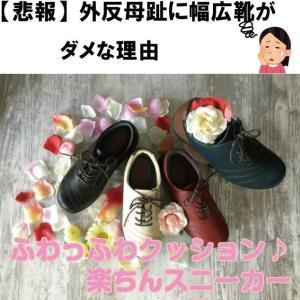 【悲報】外反母趾に幅広靴がダメな理由