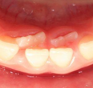 永久歯が生えてきた