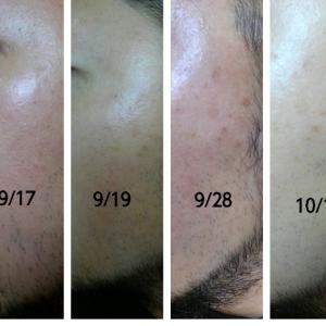【2週間】40歳目前の肌に「ヒトプラセンタジェル」を使ってみた感想