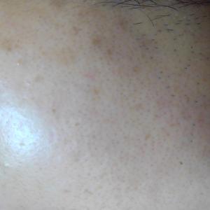 「ヒトプラセンタジェル」で肌をきれいになり10歳若返った話
