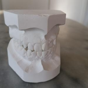 歯の矯正終了 !! 歯科矯正の大切さを知る