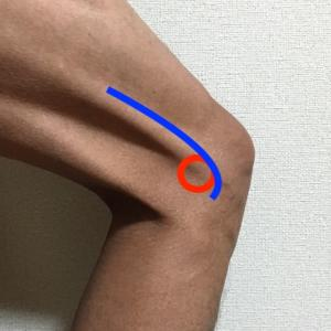腸脛靭帯炎を再発させないために。原因を知ってランニングフォームを治す。