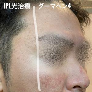 【毛穴治療×施術比較②】ダウンタイム比較は?ピコフラクショナル × CO2フラクショナル × ダーマペン4 × IPL光治療