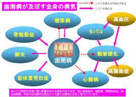 歯周病が全身に引き起こす病気について