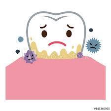 歯周病になりやすい人の特徴10個を上げてみました。