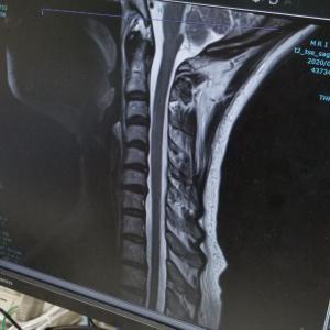 MRI を見せてもらった!