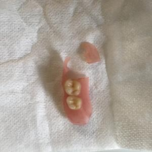 脳梗塞者 シリコン製の入れ歯 一部を飲み込んだ