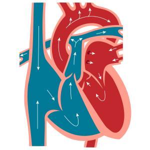 心臓カテーテル検査のリスク~動脈を穿刺する~