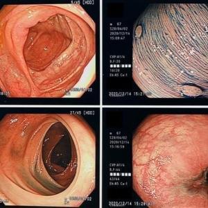胃と大腸の内視鏡検査