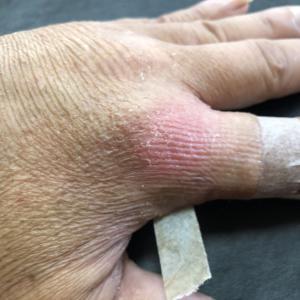指の靭帯損傷お話し①(怪我をしてから)