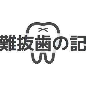 【超難抜歯】親知らずの断捨離!入院〜抜歯までの1ヶ月の記録