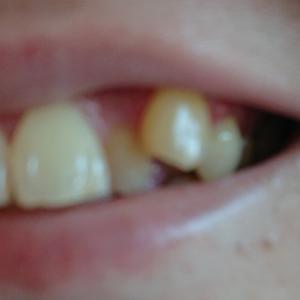 八重歯の変貌