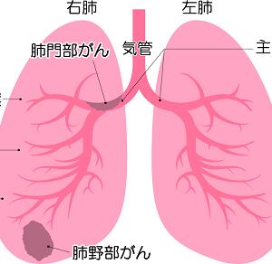 肺がん検診を受けてきました