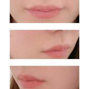 唇のアートメイク(経過ブログ)