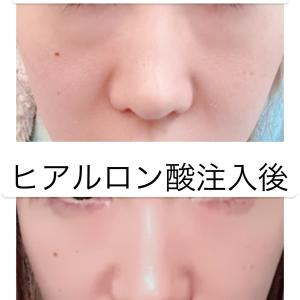 目の下のクマ 治し方(ヒアルロン酸)