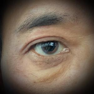 緑内障。右目が・・・