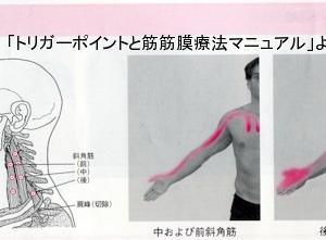 胸郭出口症候群について