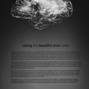 【英語学習アプリ】英語勉強するなら脳科学に基づいたiKnow!がおすすめ!