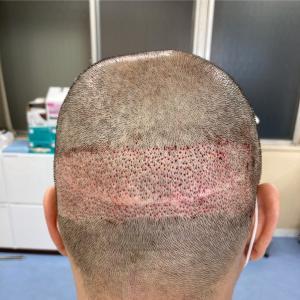 植毛手術、終わりました。1時間後