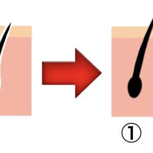 植毛手術後(27日目) 毛嚢炎の話