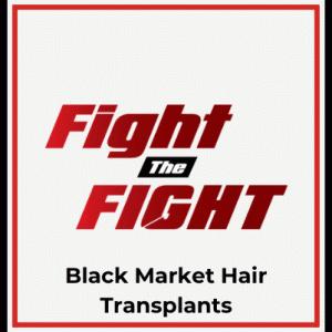植毛手術後(37日目) 国際毛髪外科学会(ISHRS)の話