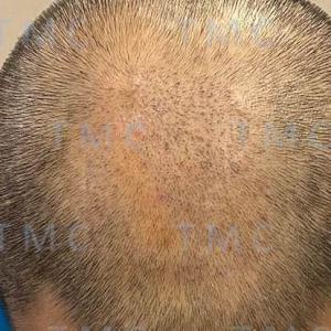 植毛手術後(90日目) 3か月分の経過写真お見せします