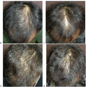 AGA(薄毛)を10年間治療した研究