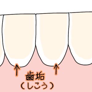 生えたての歯でも歯石がつくので注意!