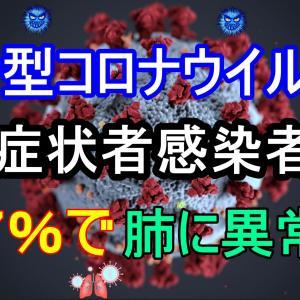 新型コロナウイルス 無症状者感染者の56.7%で肺に異常