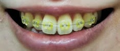歯列矯正② 2~5回目