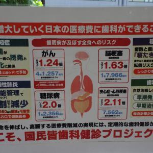 インプラント治療②