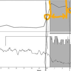 【強迫性障害】睡眠ホルモン「メラトニン」の分泌を最高レベルにする方法