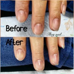 元美容師だから分かる辛さ…キューティクル周りの皮膚の盛り上がりがひび割れの原因!