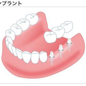 歯は大切だけど