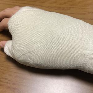 【手術】右手親指脱臼骨折すると...②〜完治まで〜