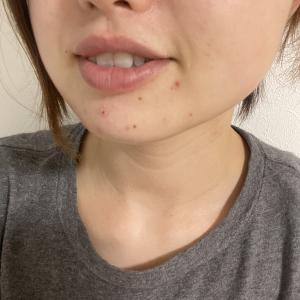 マスク肌荒れリアルレポート⑤最終報告【写真付】