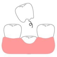 5才の娘の歯抜け記念日【抜けた歯の行方は…】
