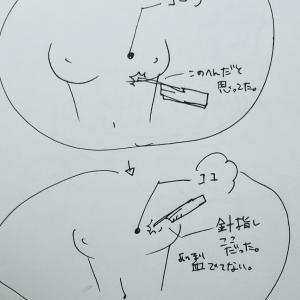乳がん 針生検 2日目