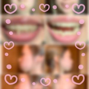 歯列矯正 29日目 歯の痛み不足…