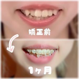 【1ヶ月経過】歯列矯正 31日目 食事の変化